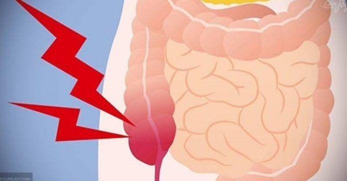 5 верных признаков аппендицита / Будьте здоровы