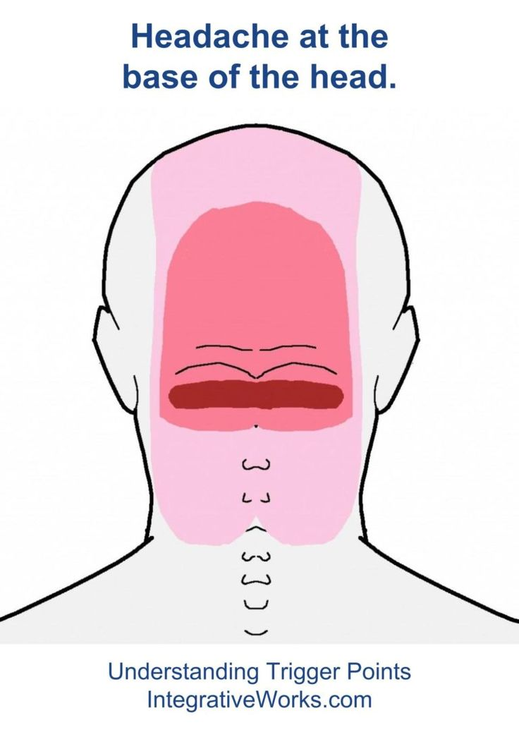 34 best Headache - Trigger Point Pain images on Pinterest ...