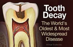 Treatment Options for Tooth Decay - Dental Filling, Inlay or Onlay, Root Canal, pr Dental Crown Options. #dentistry #treatmentoptions #dentalcare #restorativedentistry #cosmeticdentist #dentist #teeth #cavity #toothache #disease #smile #tooth #hygienist