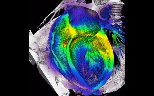 La mortalidad por síndrome coronario agudo en España continúa disminuyendo. http://www.farmaciafrancesa.com/home.asp