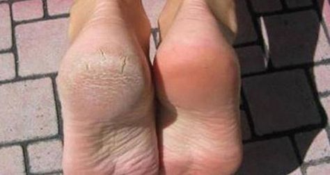 Une astuce ou remède ou solution naturelle et efficace pour traiter la corne sous les pieds, les talons crevassés, les pieds fendillés ou fissurés avec du bicarbonate de soude.