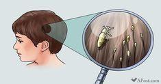 Kein Arzt erzählt Dir davon: Wie man Kopfläuse einfach und schnell loswird! Mario Lopatar