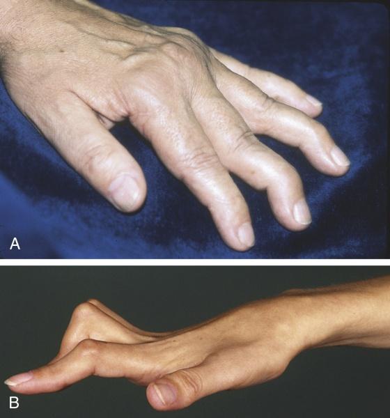 картинки деформация руки лучшие картинки