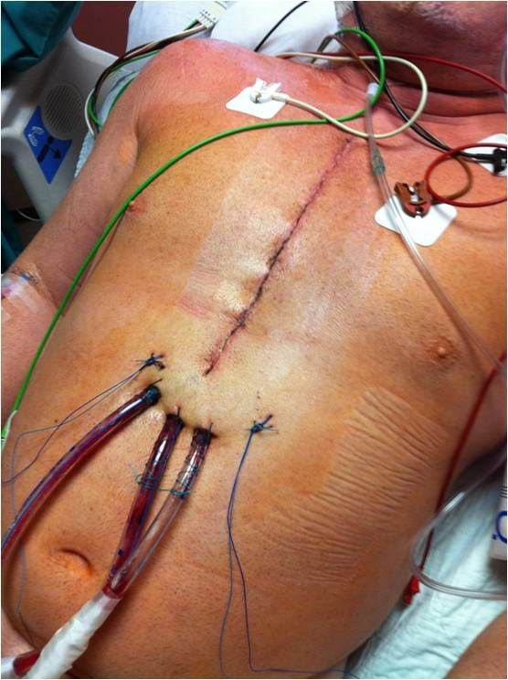 Six Reasons to Give Up Meat & Adopt a Plant-Based Diet (pic of quadruple bypass surgery)