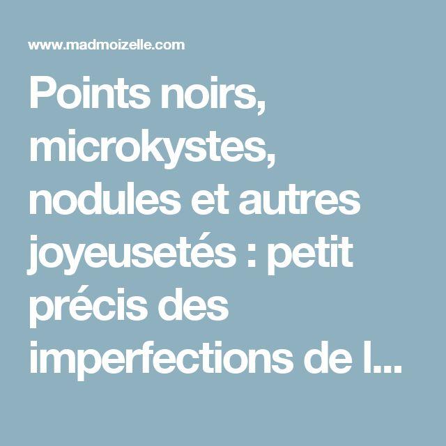 Points noirs, microkystes, nodules et autres joyeusetés : petit précis des imperfections de la peau