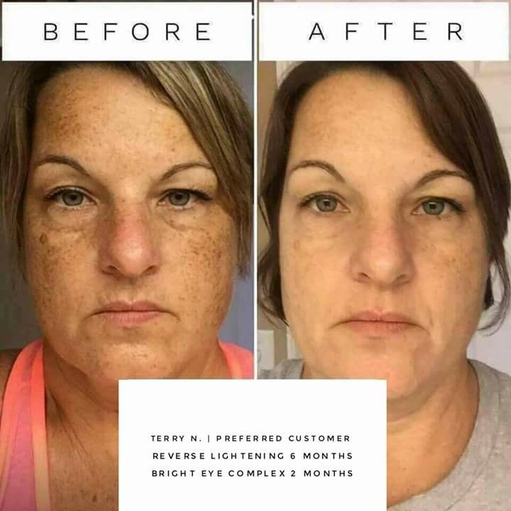 Erase The Sun Damage Achieve A Clean Slate With The Help Of Our Reverse Regimen Check Out Hypoallergenic Skin Care Cheap Skin Care Products Skin Care Regimen