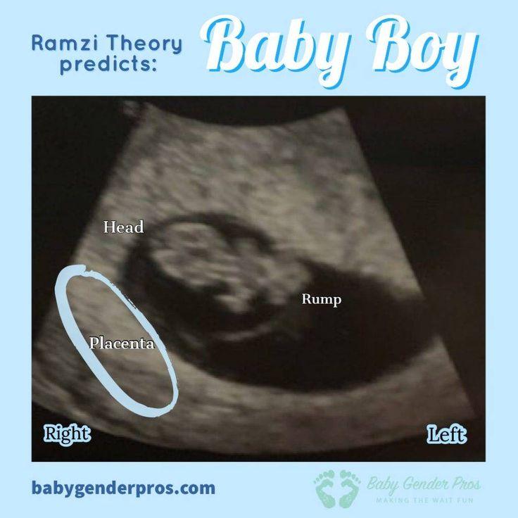 Ramzi Theory - Week by Week - Baby Gender Pros in 2020 ...