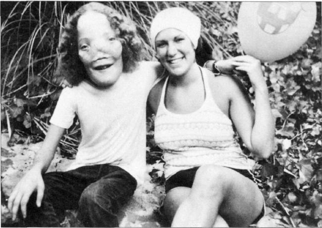 Mask: The Real Rocky Dennis  #RockyDennis  #Mask  #EricStoltz  #MaskMovie  #Cher  #PeterBogdanovich  #Movies