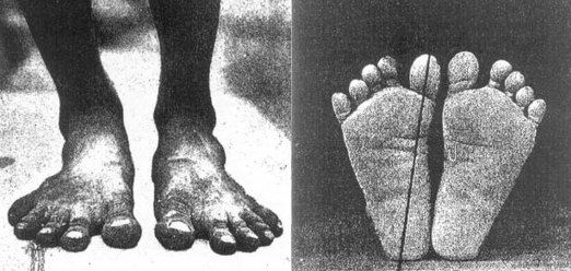 Most people, including doctors, have never seen a natural foot, unaltered by footwear. The following images of habitually bare feet are taken from a study performed almost 100 years ago, published 1905 in the American Journal of Orthopedic Surgery, which examined the feet of native barefoot populations in the Philippines and Central Africa.  The little toes spread naturally and fan out to provide a wide, stable base for walking or standing.