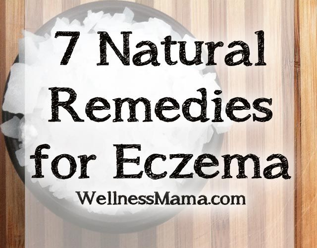 7 Natural Remedies for Eczema. This page is loaded with good ideas for treating my little one and her father...both eczema sufferers since the time they were born...