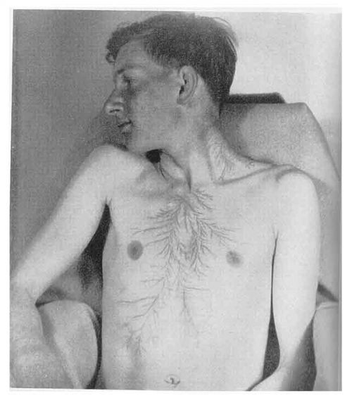 Scars from being struck by lightning, called lightning flowers or Lichtenberg figures