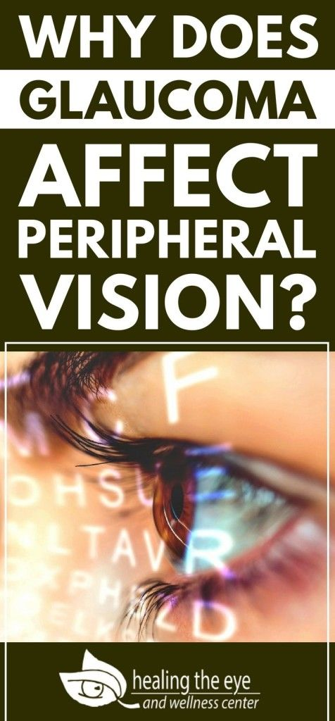Why Does Glaucoma Affect Peripheral Vision Health Pinterest