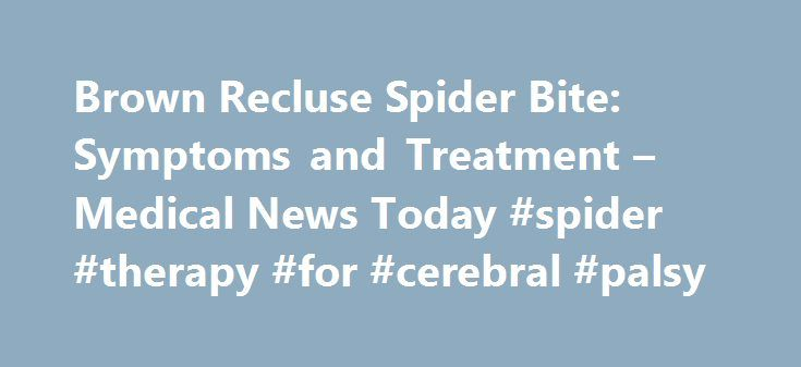 Brown Recluse Spider Bite: Symptoms and Treatment – Medical News Today #spider #therapy #for #cerebral #palsy http://raleigh.remmont.com/brown-recluse-spider-bite-symptoms-and-treatment-medical-news-today-spider-therapy-for-cerebral-palsy/  # Brown Recluse Spider Bite: Symptoms and Treatment Article last reviewed by Mon 24 October 2016. Visit our Veterinary category page for the latest news on this subject, or sign up to our newsletter to receive the latest updates on Veterinary. All…