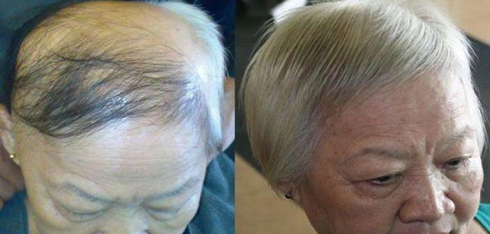 Dökülen Saçlar İçin Evde Serum Hazırlayın