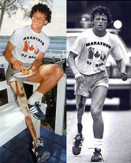 Terry Fox Canadian Hero fighting against all odds
