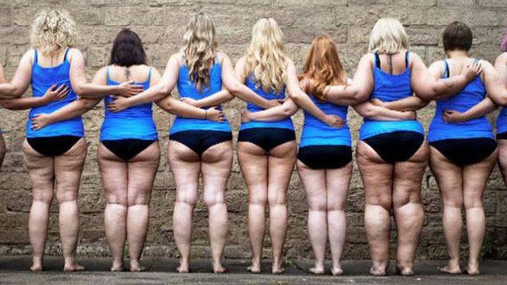 """Überwiegend Frauen leiden unter der kankhaften Fettverteilung, genannt """"Liödem"""": Sich so vor der Kamera zu zeigen fällt den Betroffenen schwer."""