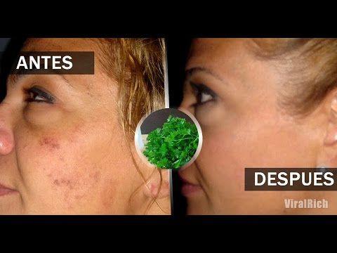Loción natural para eliminar las manchas de la cara, las pecas y el acne - YouTube