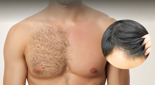 What to do when the #donor_area on your head doesn't provide you with enough hair for #hair_transplantation? When you simply do not have a sufficient supply of hair at the back of your head to cover the balding parts? #Body_Hair_Transplant by #MCANHealth is the solution https://mcanhealth.com/en/blog/post/body-hair-transplant-an-alternative-worth-looking-at