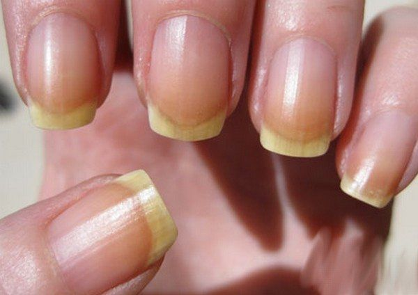 Yellow Nails Warning Sign Causes Nail Syndrome Herbal Remes Home