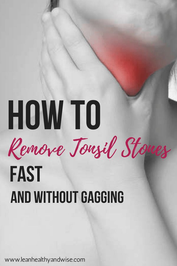 Find out how you can get rid of tonsil stones fast and permanently. Remove tonsil stones without gagging. View http://lhaw.co/removetonsilstones