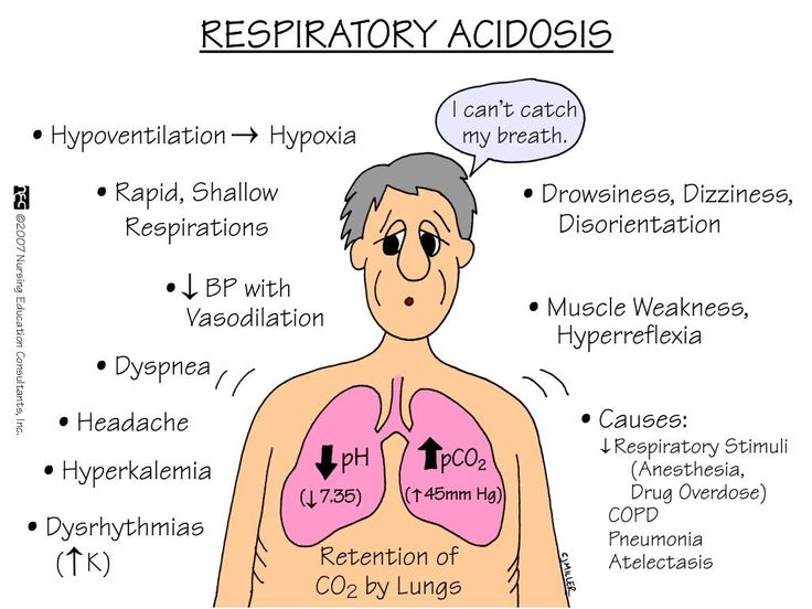 65 best nursing (acidosis, alkalosis) images on pinterest, Skeleton