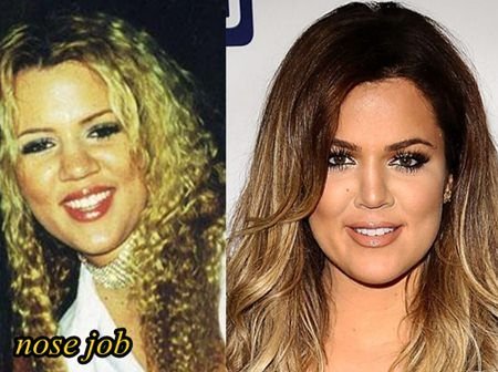 khloe kardashian nose job celebrity nose jobs