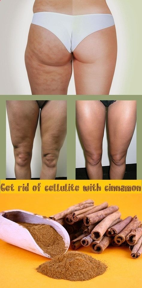 get rid of cellulite with cinnamon home remedies pinterest. Black Bedroom Furniture Sets. Home Design Ideas