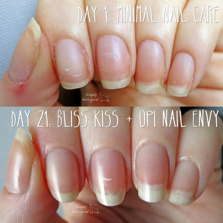 Opi Nail Envy Just My Look: Naked Nails BEFORE AND AFTER Using Bliss Kiss Cuticle Oil
