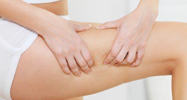 Traiter et prévenir la rétention d'eau ou l'œdème grâce à des remèdes et traitements naturels qui aident à réduire le gonflement des jambes et des pieds.
