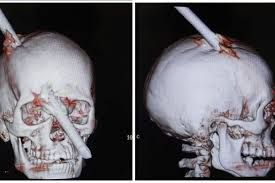 phineas gage unlucky or lucky An unlucky string of events  investigate the two consecutive accidents and the  two periods of bad luck  the strange case of phineas gage.