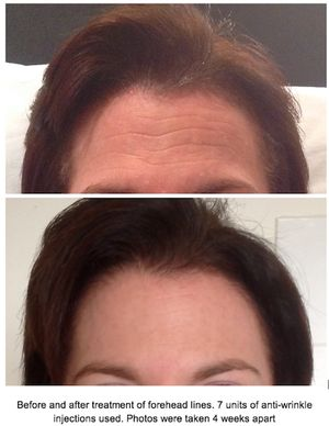 Forehead line before after photos