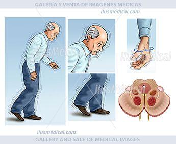 Trastorno del mal de Parkinson. Ilustración de persona anciana con temblores incontrolados en ...