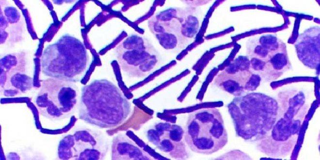 Las bacterias resistentes a los antibióticos matan a miles de europeos al año - http://aquiactualidad.com/las-bacterias-resistentes-los-antibioticos-matan-miles-europeos-al-ano/