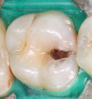 Wenn du ein Loch in einem deiner Zähne entdeckst, könntest du mit folgender Rezeptur versuchen, deine Zähne nachwachsen zu lassen. Unser Körper ist pausenlos damit beschäftigt, sich selbst zu erneuern, zu reparieren und altes Material gegen neues auszutauschen. Jeden Tag werden im menschlichen Organismus etwa 500 Milliarden altersschwache Zellen abgebaut, wenn man sich schlecht ernährt.