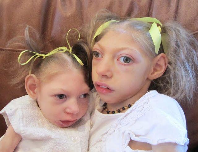 Alerta microcefalia es causada por una vacuna y no por virus zika - La Biblioteca Médica http://www.biblioteca-medica.com.ar/2016/02/alerta-microcefalia-es-causa-por-una.html?m=1