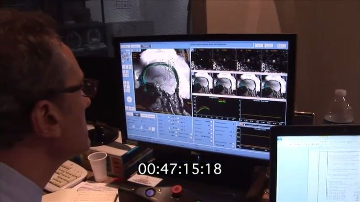 La enfermedad de Parkinson, que resulta de la muerte de las células nerviosas en el cerebro, es un trastorno neurológico crónico degenerativo que afecta al menos a un millón de personas en los Estados Unidos y más de cinco millones en todo el mundo. Resofus combina las imágenes resonancia magnética y los ultrasonidos en la tecnología de Ultrasonidos Focalizados, proporcionando un tratamiento transcraneal no invasivo guiado por imágenes de RM sin radiación ionizante.