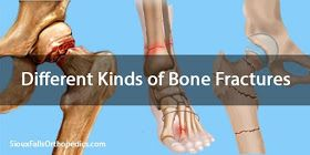There are different types of bone fractures. A bone fracture can occur in any bone of the human body. High impact injuries or disease can cause a bone to break.