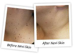 Peoples News - SkinTek Mole and Skin Tag Remover