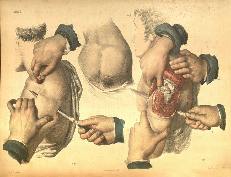 by nicholas-henri jacob traité complet de l'anatomie de l'homme [1831-1854]