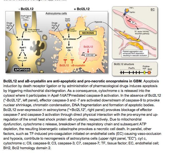 Glioblastoma multiforme: Incurable brain cancer gene BCL2L12 is silenced