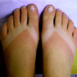 Most people that live in Florida end up with this tan...