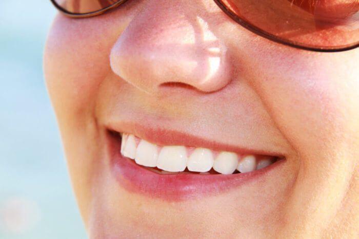 Blanqueamiento dental – Que es, tipos, opiniones precio