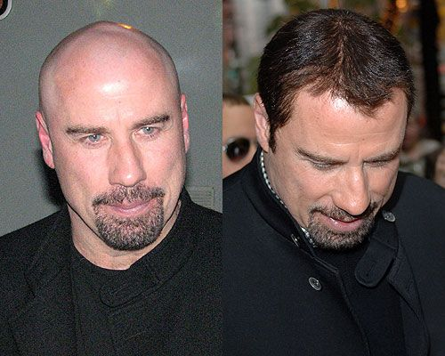 how to wear a wig when bald