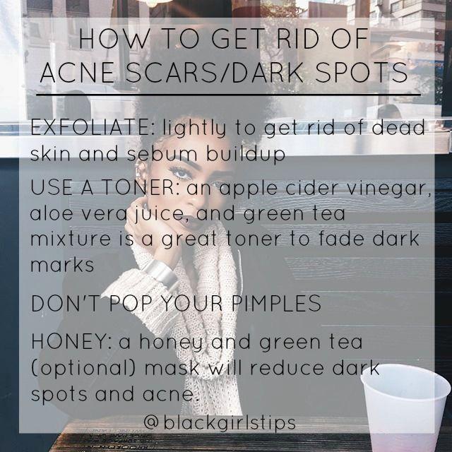 Best 25 acne scars ideas on pinterest acne scar removal acne best 25 acne scars ideas on pinterest acne scar removal acne remedies and face scar removal ccuart Gallery