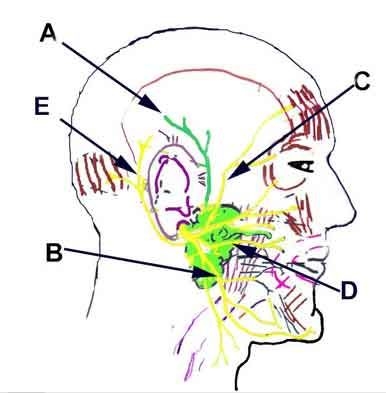 Parotid gland and facial nerves (coloring book): A  - Auriculotemporal nerve (Mandibular division of CN #5), B - Mandibular branch of the facial nerve, C - Temporal branch of the facial nerve, D - Buccal branch of the facial nerve, E - Posterior auricular branch of the facial nerve