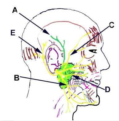 Parotid gland and facial nerves (coloring book): A  - Auriculotemporal nerve (Mandibular division of CN #5), B - Mandibular branch of the facial nerve, C - Temporal branch of the facial nerve, D - Buccal branch of the facial nerve, E - Posterior auricular branch of the facial nerve