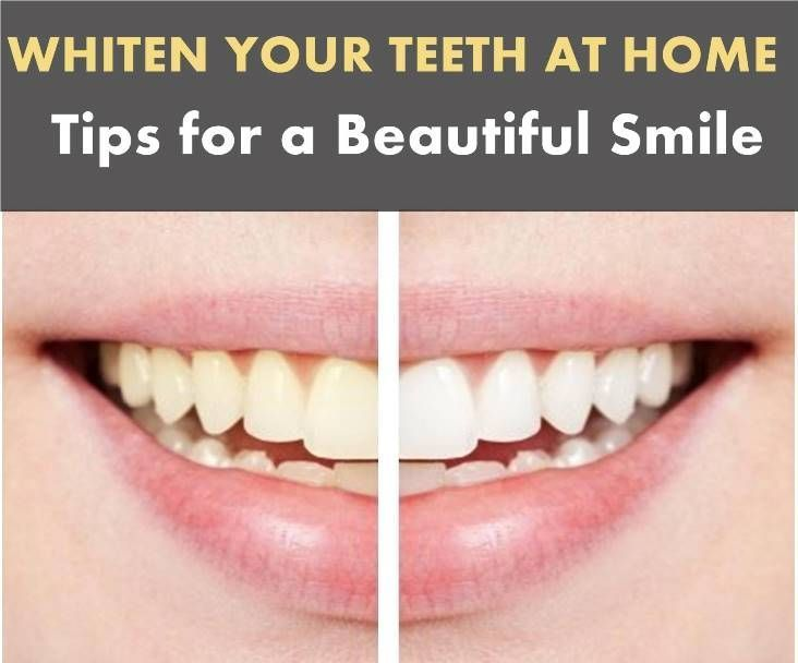 Whiten Your Teeth At Home Tips For A Beautiful Smile