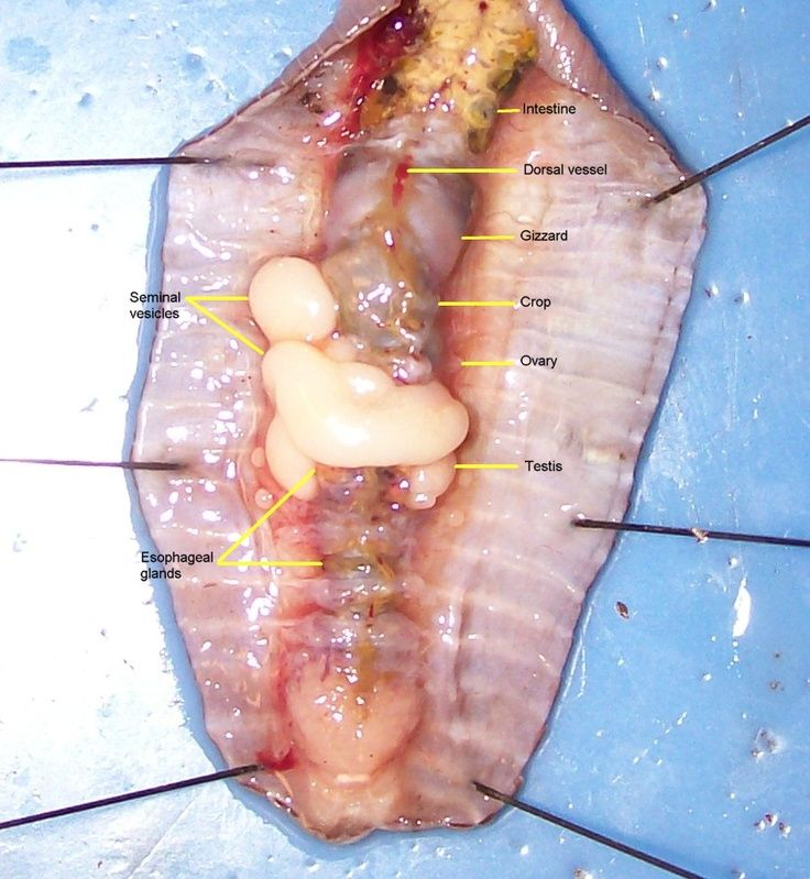 worm dissection for biology | Dissection | Pinterest ...