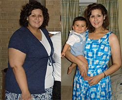 Struggling with weight all her life, Diana felt awful every day.  Diagnosed with diabetes at 23, she had recurrent diabetes-related infections and bouts of pneumonia, as well as stress fractures in her legs and severe sleep apnea due to her weight. Diana's gastric bypass was performed by Dr. Patel in October 2008. After losing 175 pounds, she is now the happy healthy mother of two energetic boys! http://texasbariatricspecialists.com/diana-gastric-bypass-surgery-san-antonio/