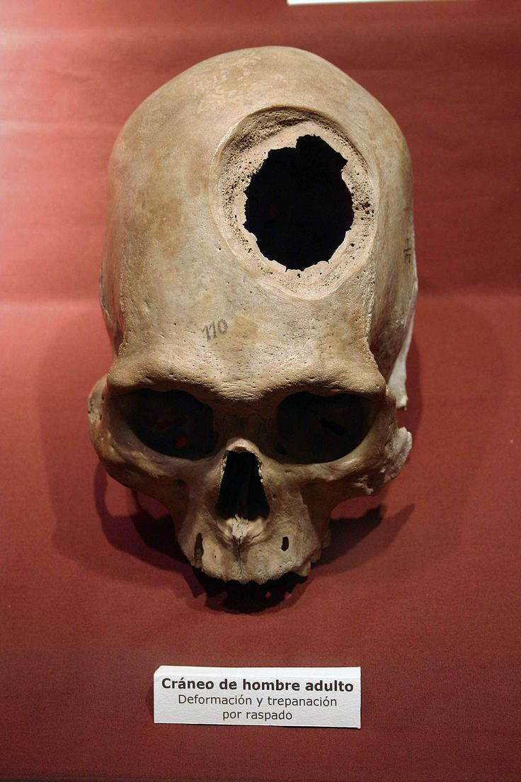 Pre-columbian  skull with   trephinated hole, Museum of Anthropoogy, Archaeology, and History, Lima